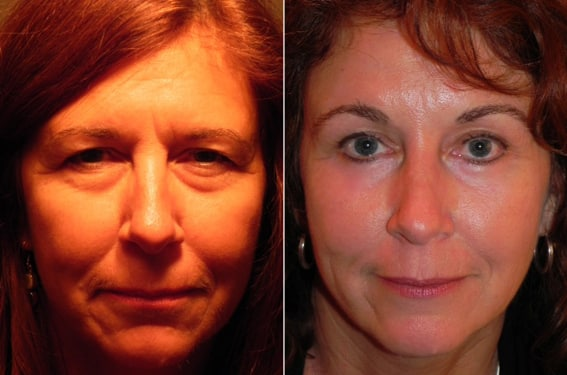 Before and After Minimal Incision Brow Lift and Lower Eyelid Surgery