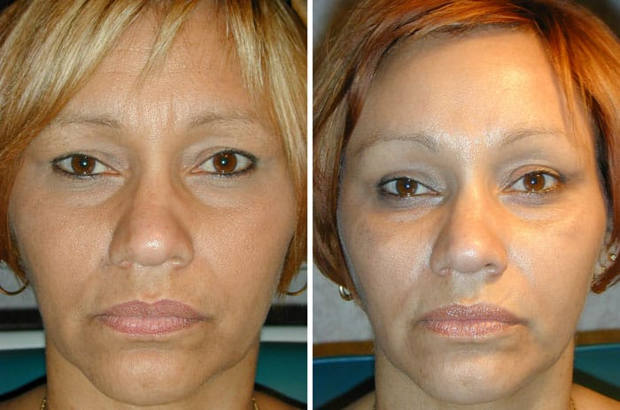 Before and After Minimal Incision Browlift