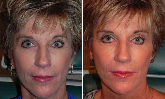 Before and After Treatment with Botox