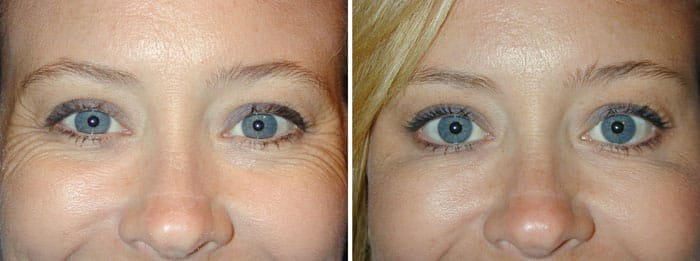 Before and After Crows Feet Treatment with Botox