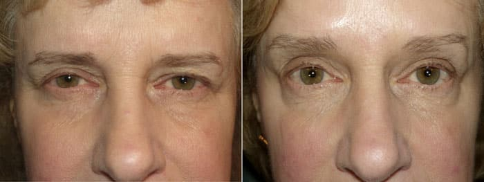 Before and After Browlift Treatment with Botox