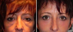 Medical Minute: Can Malar Mounds and Eyelid Festoons Be Treated?