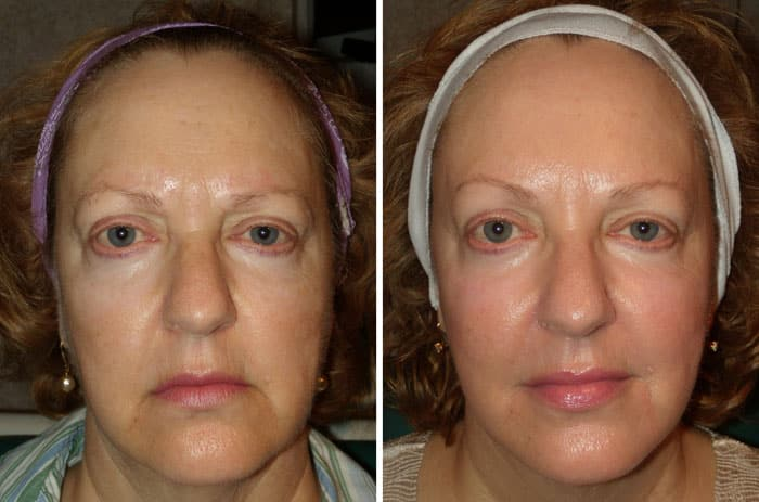 Radiantlift Before and After