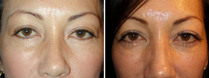 Before and After Latisse Treatment