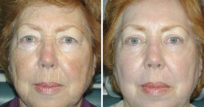 Upper and Lower Laser Eyelid Surgery