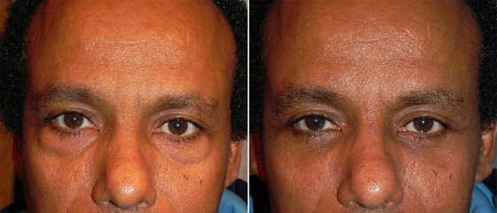 Before and After Lower Laser Eyelid Surgery