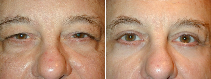 Before & After Upper and Lower Laser Eyelid Surgery