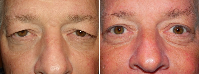 Before and After Upper Laser Eyelid Surgery 2