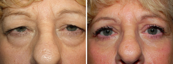 Before and After Upper and Lower Laser Eyelid Surgery