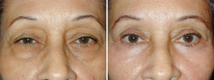 Before and After Lower Laser Eyelid Surgery with Lower Eyelid Laser Skin Resurfacing
