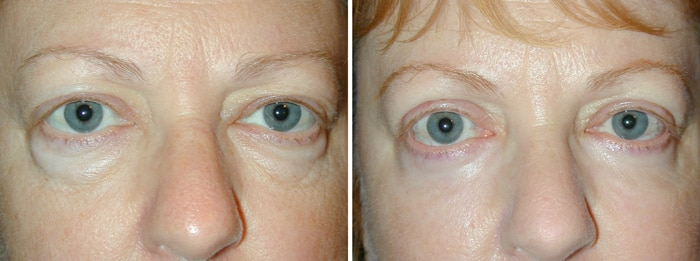Before and After Lower Laser Eyelid Surgery with Lower Eyelid Laser Skin Resurfacing 2