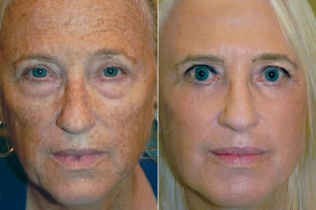 Reset For Sun Damage treatment cna reverse facial sun damage. You can see the amazing results in this before and after photo.