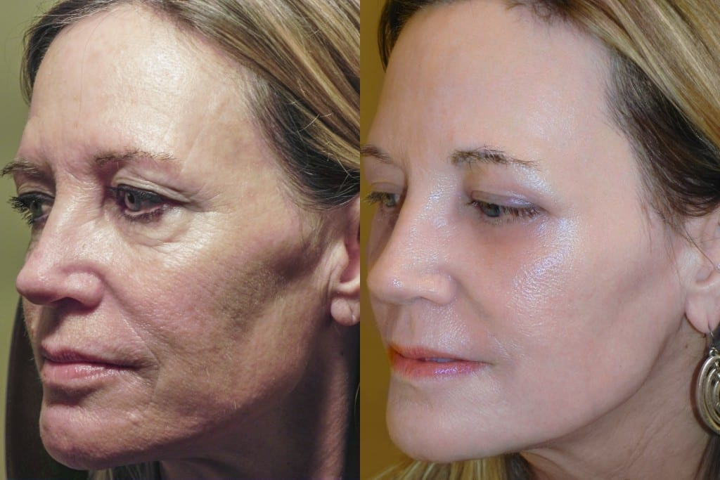 Before and after RESET for sun damage procedure