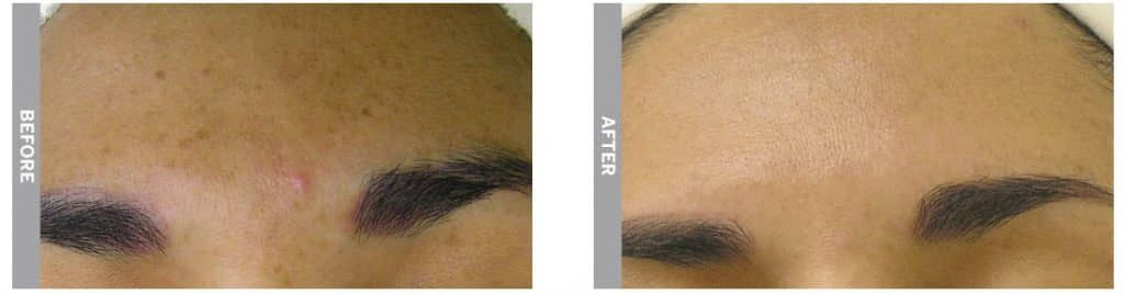 HydraFacial treatment for brown spots (before and after 4 sessions)