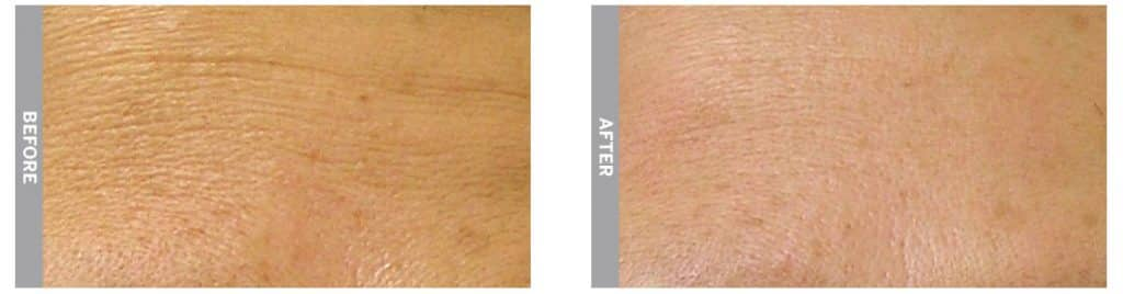 HydraFacial treatment for fine lines (before and 1-month after treatment)