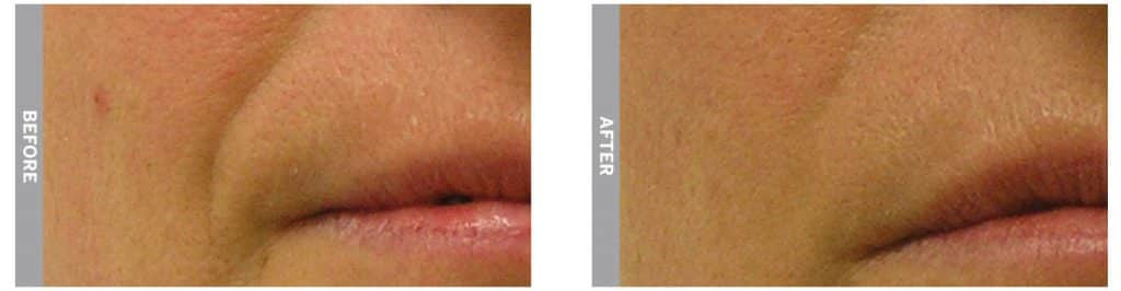HydraFacial treatment for laugh lines (before and after 5 sessions)