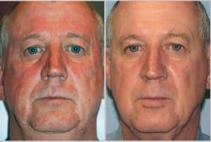 Medical Minute: Can Lasers Help Facial Rosacea?